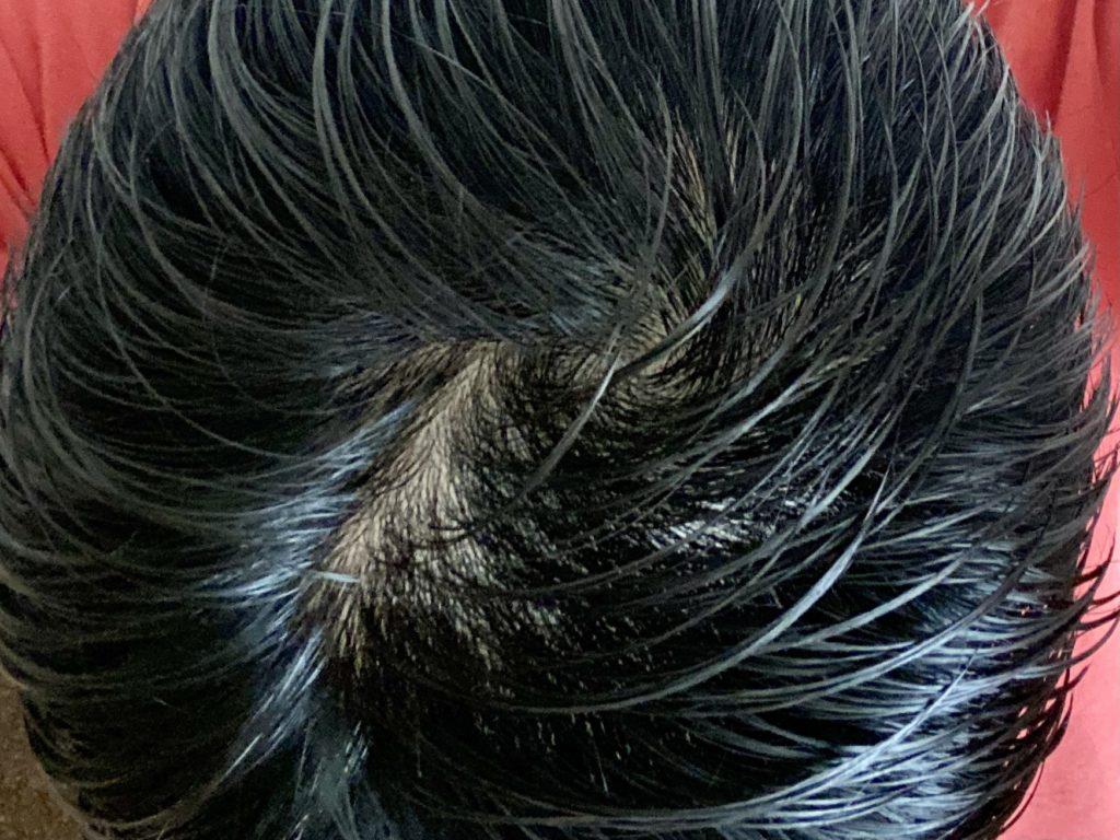 AGA治療開始前頭頂部